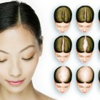 Hairstyles for balding women